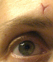 Image of an eye with a scar over it in the shape of a Y